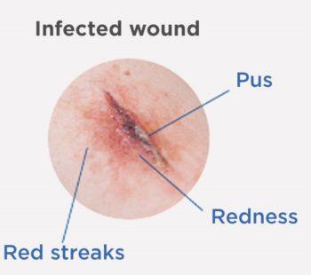 Клиничен случай с незаздравяваща рана