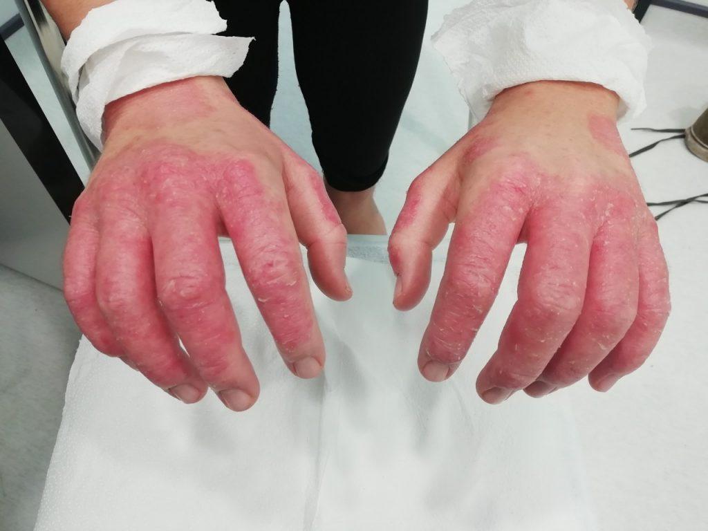 Клиничен случай с упорит псориазис по ръцете, снимка отгоре
