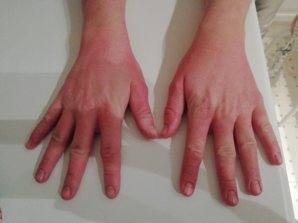 Псориазис по ръцете след едномесечно лечение снимка отгоре