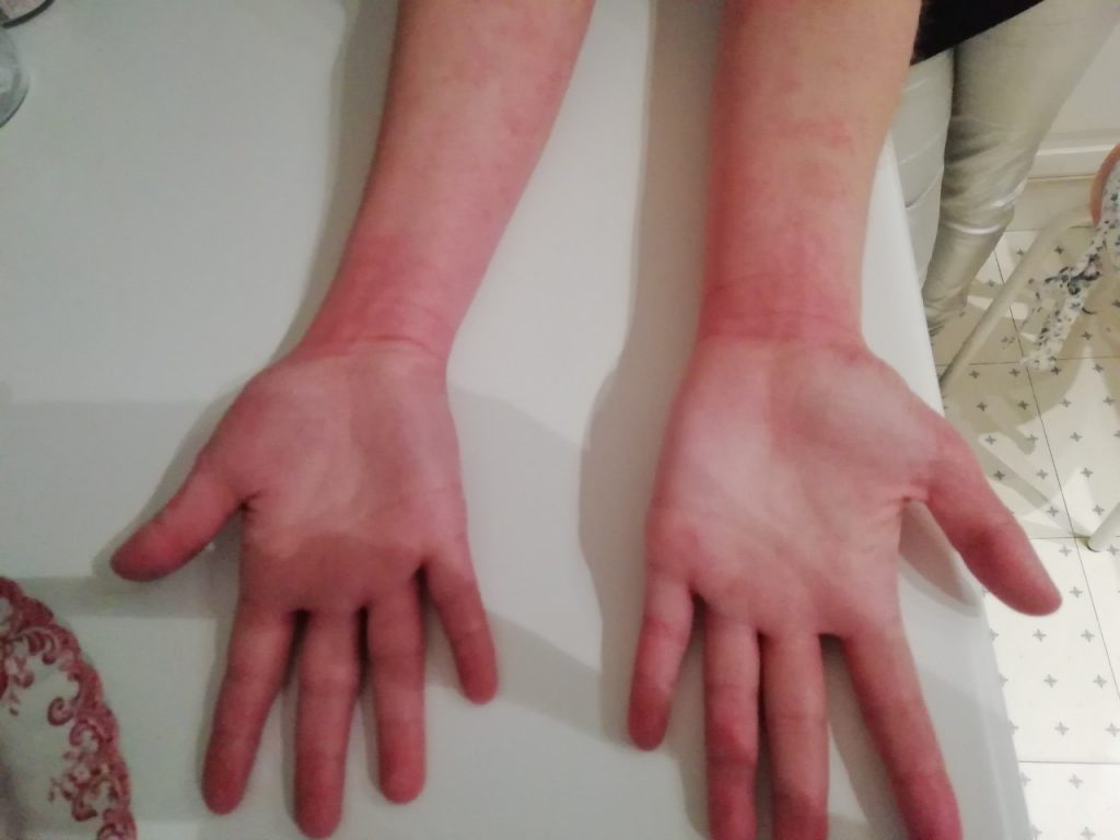 Псориазис по дланите след едномесечно лечение