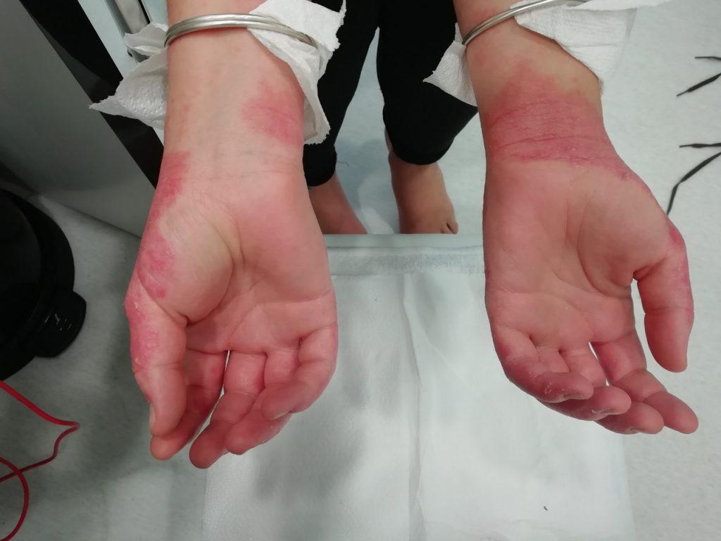 Клиничен случай с упорит псориазис по ръцете снимка отдолу
