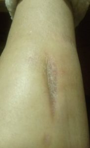 Non healing wound after treatment